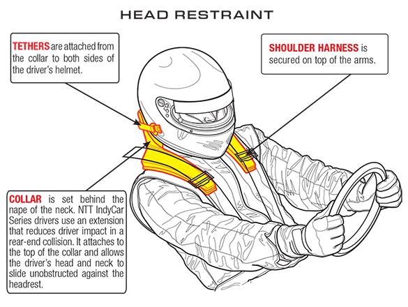 Frontal Head Restraint
