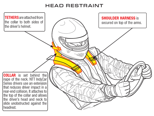 frontal head restraint